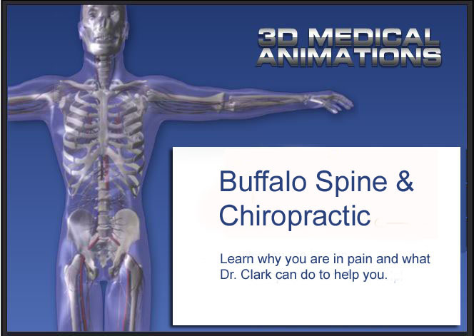 Non Surgical Spinal Decompression 3D animation Tutorials